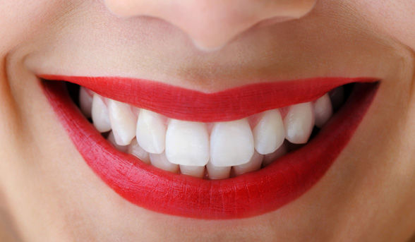 Teeth Whitening Special in Melbourne
