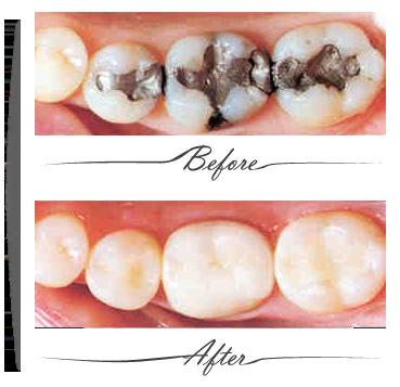 dental filling at melbourne dentist clinic