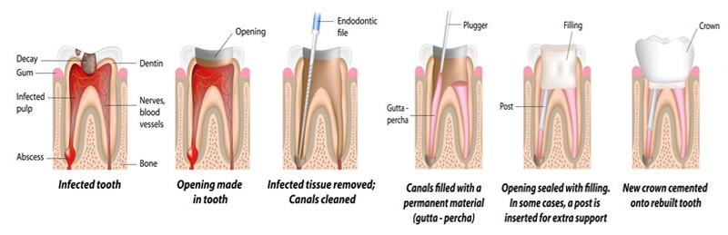 Melbourne Dentist Clinic Root Canal